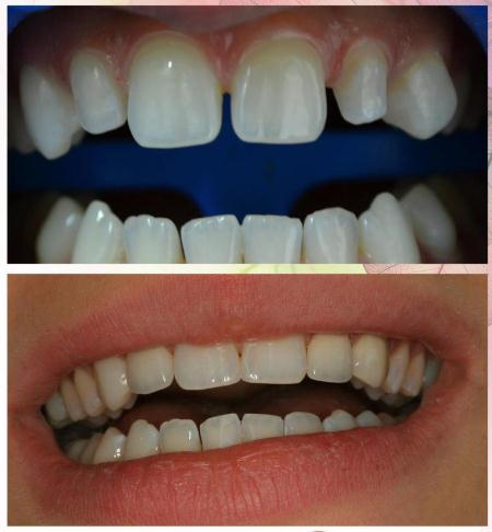 Order Dentistry dentures