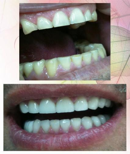 Поръчка Лечение на заболявания на млечните зъби