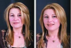 OXY терапии за лице